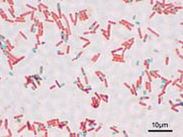 180pxbacillus_subtilis_spore